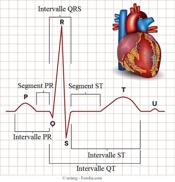 sequence lecture ecg